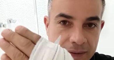 Anderson Di Rizzi alerta outros pais após acidente grave no banheiro