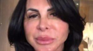 """Gretchen faz novo procedimento estético no rosto e internautas a comparam com """"Fofão"""""""